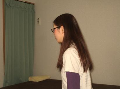 紫斑病26歳女性