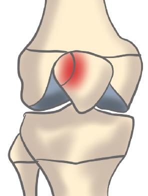 二分膝蓋骨